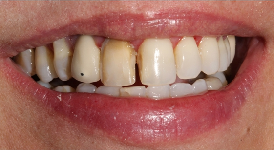 Dentes preparados para receber as laminas em cerâmica .